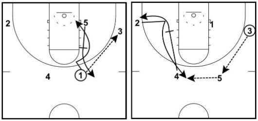 オプション2:UCLAカット(UCLA Cut)